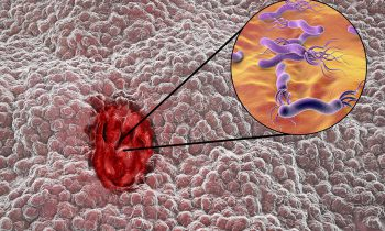 disturbi-gastrici-quando-la-causa-è-l'helicobacter-pylori-1-biochetasi