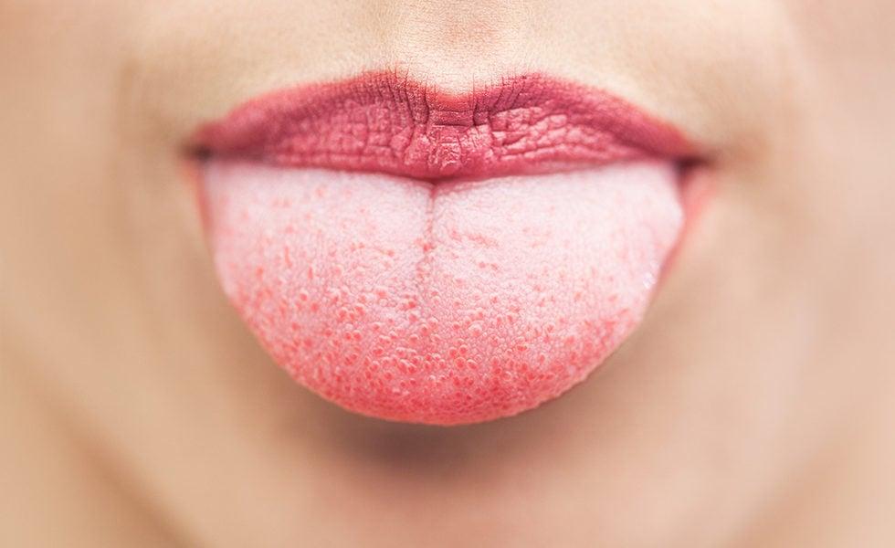 lingua-bianca-e-cattiva-digestione-quando-la-lingua-e-lo-specchio.della-salute-1-biochetasi