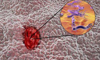 disturbi-gastrici-quando-la-causa-e-lhelicobacter-pylori-1-biochetasi